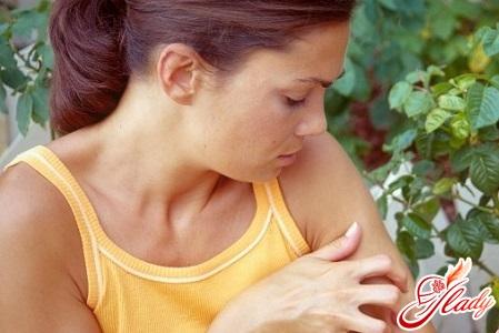 allergy hives treatment