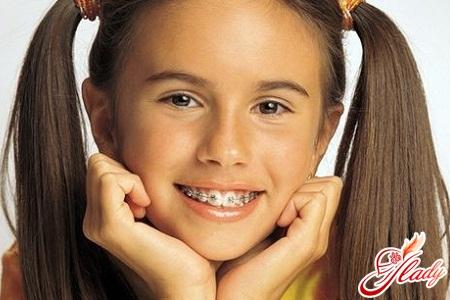 Children's dentistry - children's bite
