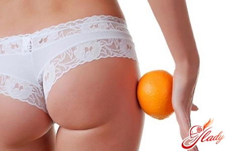 how to deal with cellulite during pregnancy