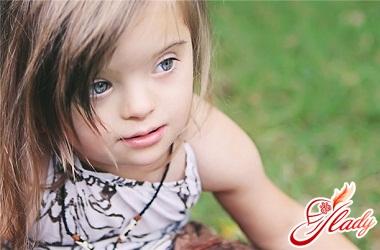 Lolita Mylva Down Syndrome