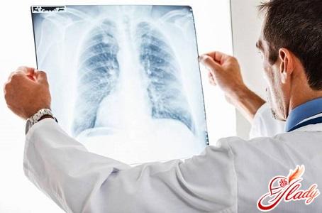 методи діагностики захворювання