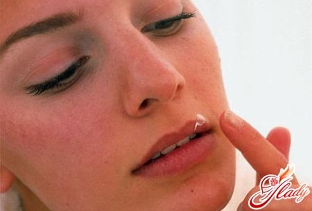 types of genital herpes