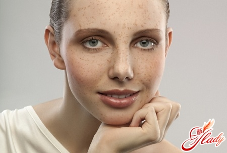 how to get rid of the pigmentation on the face