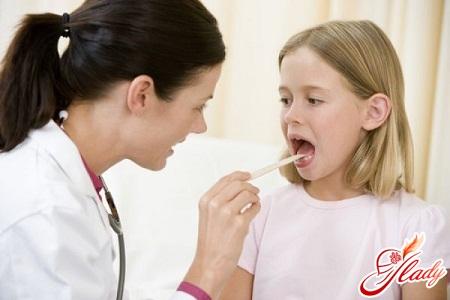 laryngitis in children