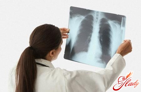 swelling of the lungs