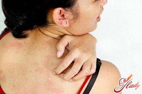 drug allergy treatment