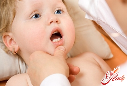 thrush in the mouth of a baby