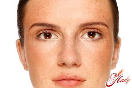 pigmentation during pregnancy