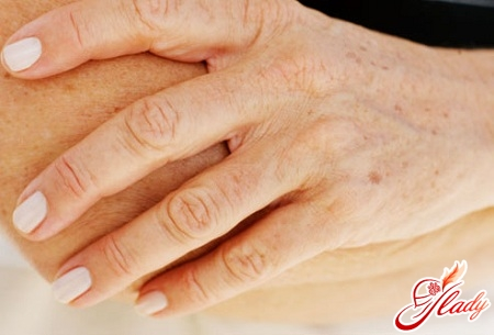 pigment spots on the hands