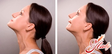 feysbuilding nose
