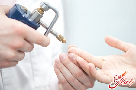 treatment of warts with nitrogen