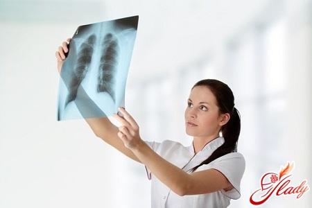 причини появи туберкульозу