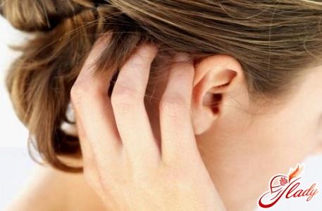 acne treatment on the head