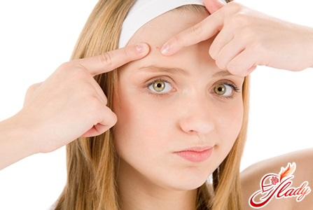 causes of acne on the forehead