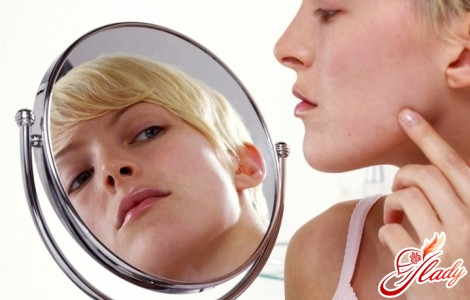 how to remove traces after acne