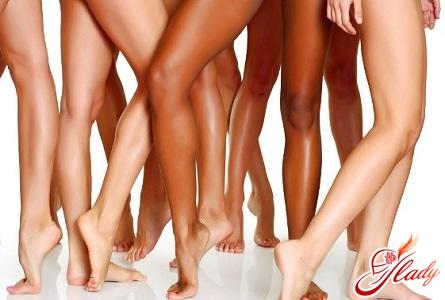 причини появи синдрому неспокійних ніг