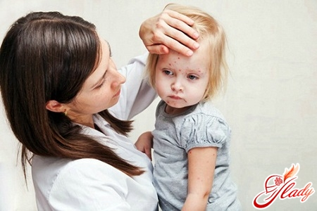 causes rashes in the child on the face