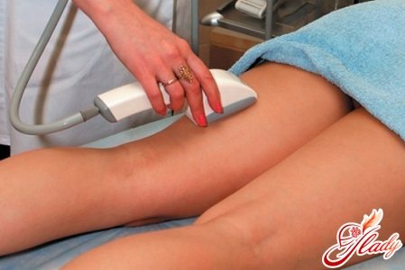 how to remove stretch marks with laser