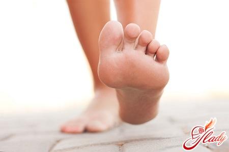 причини вальгусной деформації стопи